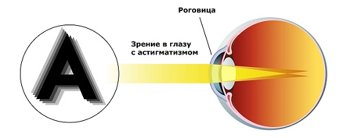 Коррекция близорукости зрения