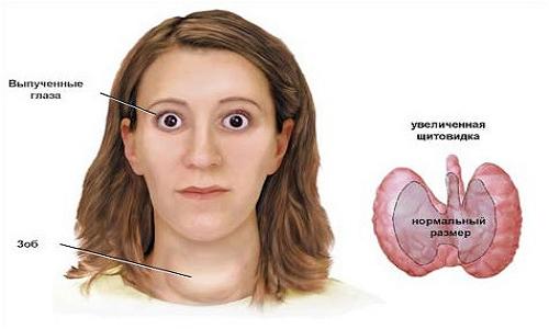 Боль в суставах лечение кремом
