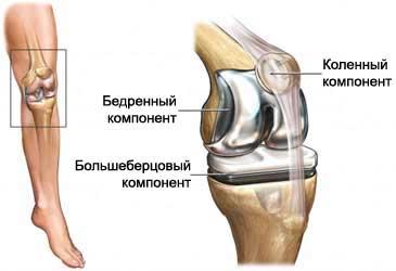 Эндопротезирование коленных суставов болит над коленом сзади