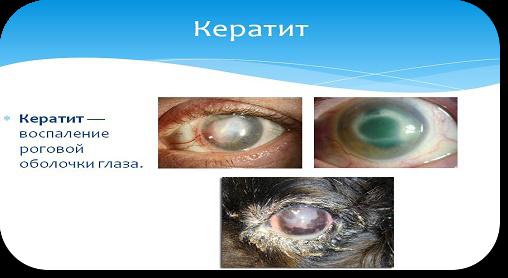 Что такое кератит. Диагностика, лечение и профилактика кератита.