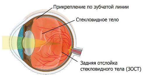 Отслоение стекловидного тела симптомы лечение