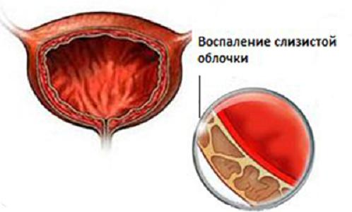 Народные средства для лечения энтерококка фекального