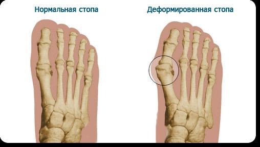 Какой врач лечит заболевание ногтей на руках